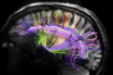 brain_fibers