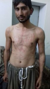 Ahmadiyya Missionary with wounds on all body