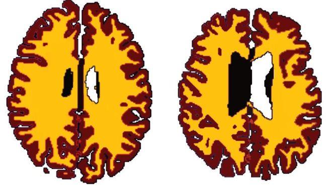 _90675217_brainobesity