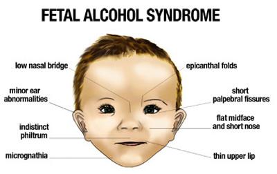 fetal-alcohol-syndrom